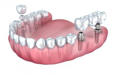 Implanty stomatologiczne bez tajemnic