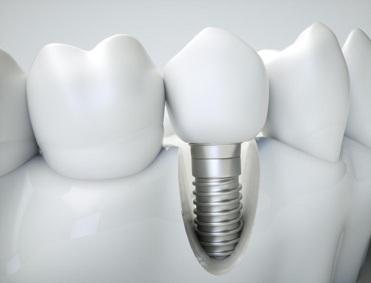 Implanty – chirurgia – dlaczego u nas ?
